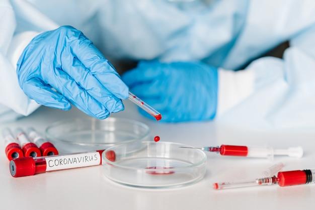 Coronavirus. médecin, infirmière, scientifique en tenue de protection et masque testant un tube avec un échantillon biologique, une seringue avec du sang contaminé par le virus corona. effectuer un test de laboratoire - résultat positif.