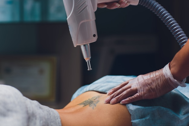 Cosmétologue faisant laser professionnel de suppression de tatouage