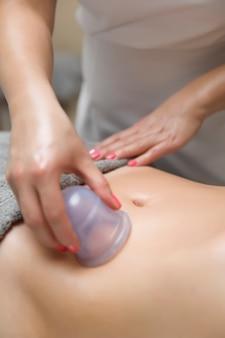 Coupe appliquée sur la peau de l'abdomen d'une patiente dans le cadre de la méthode traditionnelle de thérapie par ventouses