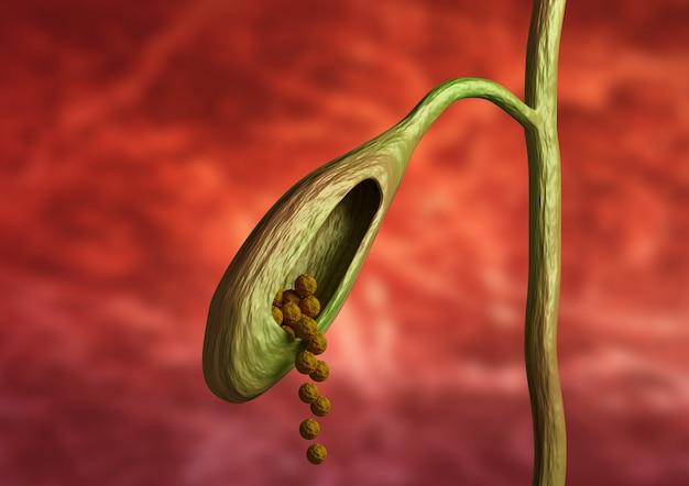 Coupe de vésicule biliaire montrant des calculs biliaires obstruant le canal biliaire sur fond organique