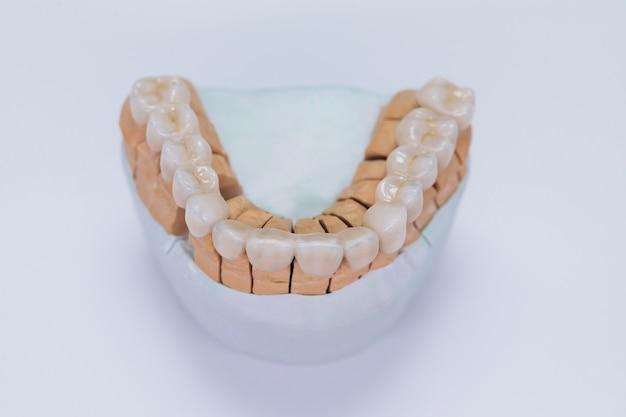 Couronne dentaire en céramique sur modèle en plâtre.