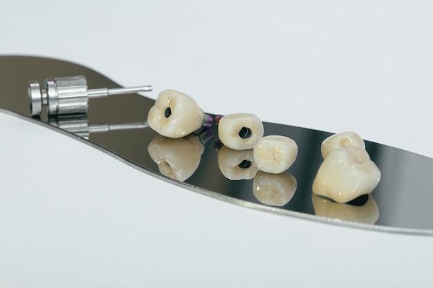Couronne monolithique vissée en zirconium sur l'implant, une vis et une clé manuelle pour visser la couronne. couronne en zirconium et pilier hybride en zirconium.