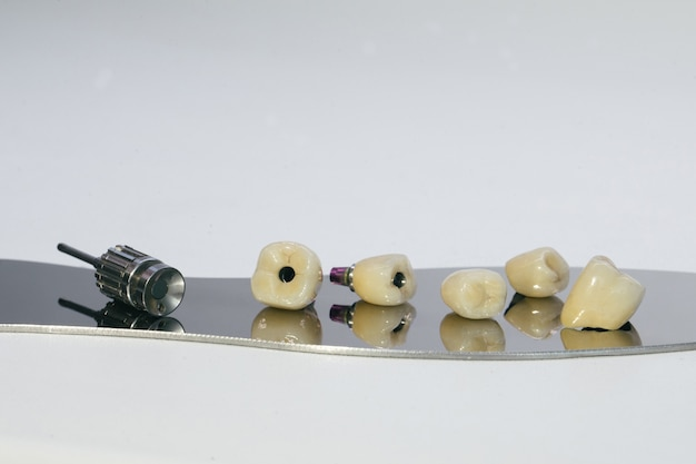 Couronne en zirconium et pilier hybride en zirconium. couronne monolithique vissée en zirconium sur l'implant, une vis et une clé manuelle pour visser la couronne.