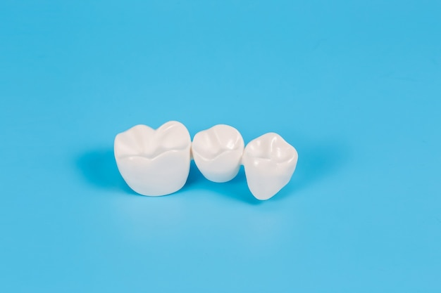 Couronnes dentaires en plastique, imitation d'une prothèse dentaire d'un bridge dentaire pour trois dents.aide visuelle pour les dentistes et les patients.
