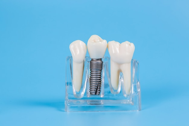 Couronnes dentaires en plastique, imitation d'une prothèse dentaire d'un bridge dentaire pour trois dents avec un implant à vis métallique sur fond bleu.