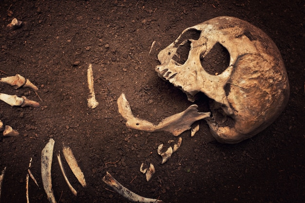 Crâne et os