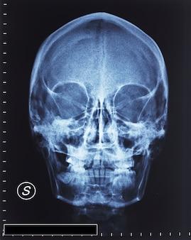 Crâne radiographie
