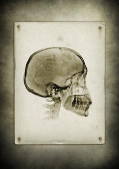 Crâne de rayons x sur un fond de papier vintage