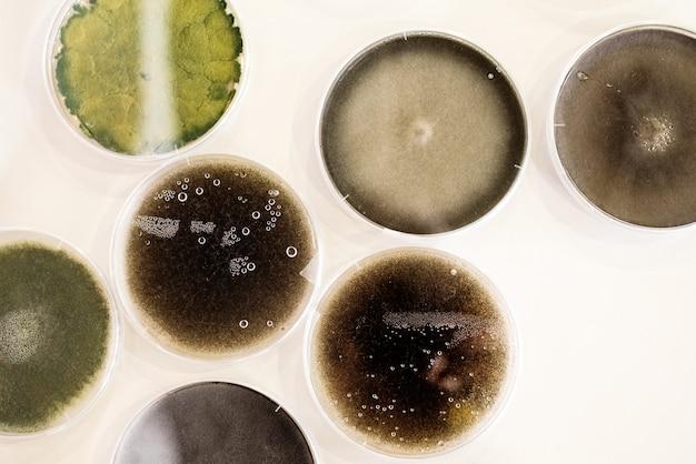 Culture de bactéries dans une boîte de pétri