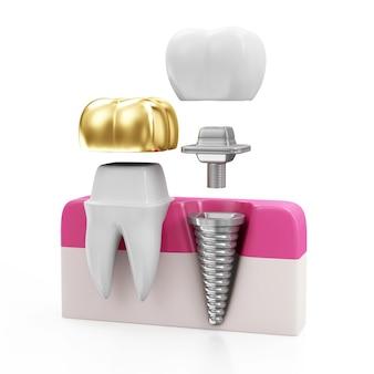Dent avec couronne dentaire dorée et implant dentaire