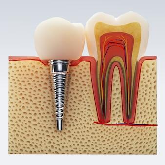 Dent humaine. illustration numérique de la section transversale des dents en isolé. rendu 3d