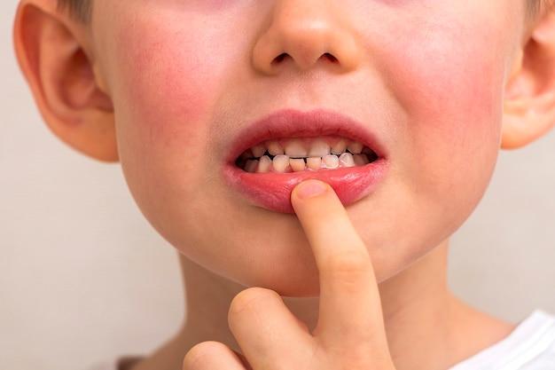 Dent lâche de l'enfant. petit garçon de 6 ans incisive de dent de bébé lâche. concept de médecine dentaire et d'hygiène buccale pour enfants. émotions de l'enfant. gros plan portrait.