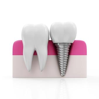 Dent de santé et implant dentaire sur blanc