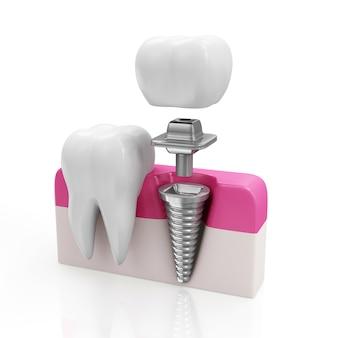 Dent de santé et implant dentaire