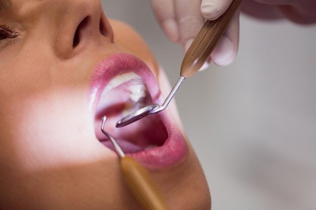 Dentiste, examiner, femme, patient, dents