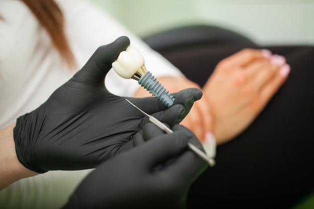 Dentiste expliquant le modèle de dents à une patiente. plans techniques sur un laboratoire de prothétique dentaire