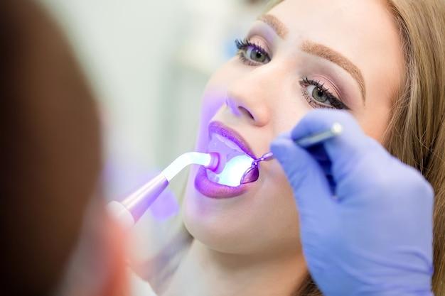 Dentiste faisant la procédure avec la lumière uv de durcissement dentaire en clinique