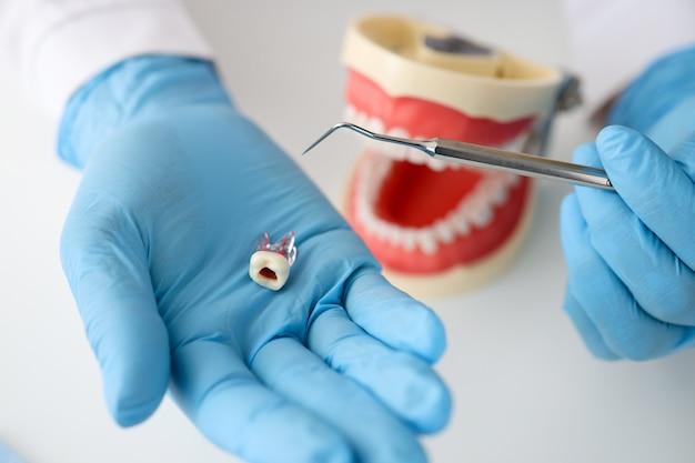 Dentiste médecin main dans la main montre le concept de symptômes d'infection du canal radiculaire de la dent