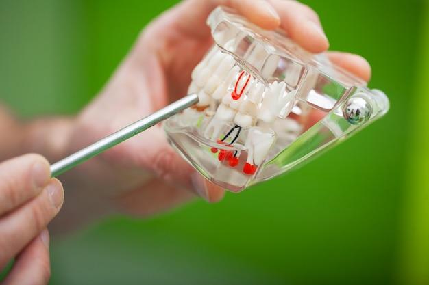 Le dentiste montre une dent problématique sur le modèle de la mâchoire