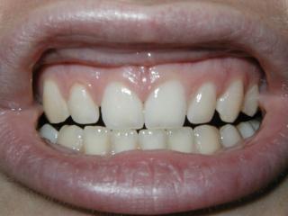 Dents, la bouche, les gencives, meuler