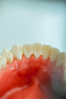 Dents de l'intérieur