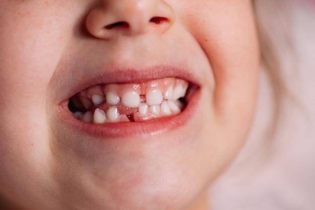 Dents serrées montrant une récente blessure à la gencive d'une dent de bébé tombée