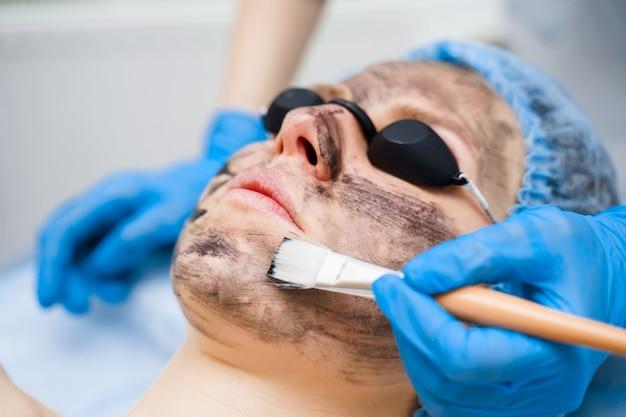 Le dermatologue étale un masque noir sur le visage pour le photorajeunissement au laser et le peeling au carbone. dermatologie et cosmétologie. utilisation d'un laser chirurgical.