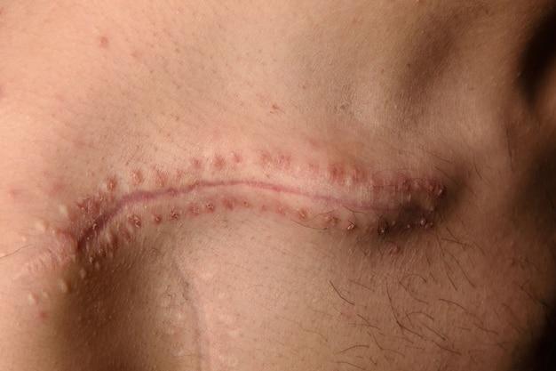 Détail d'une cicatrice sur la clavicule