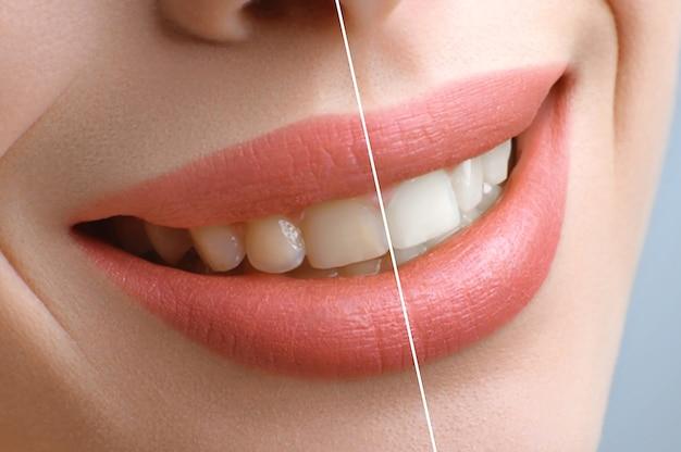 Différence entre la photo traitée et non traitée des lèvres et des dents de la femme