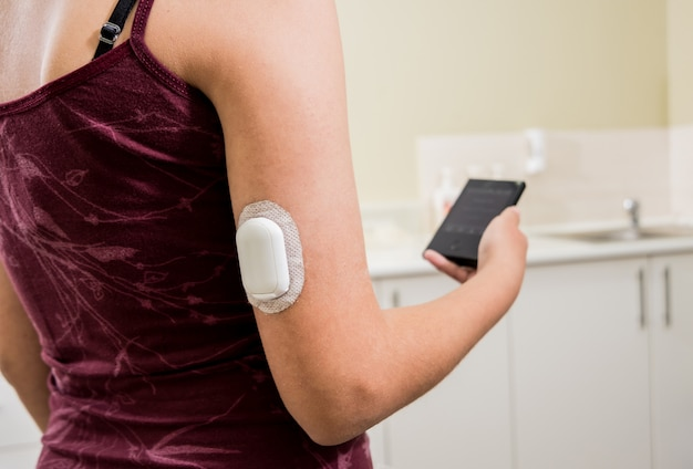 Dispositif médical pour le contrôle du glucose. pod de surveillance du glucose en continu. technologie sans fil moderne.