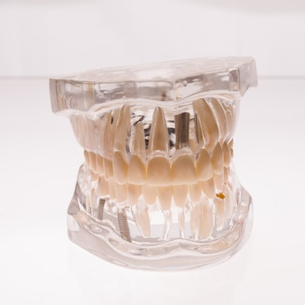 Disposition de la mâchoire des prothèses transparentes sur fond blanc - image