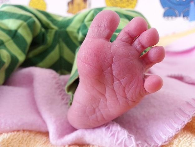 Dix pieds enfant renaît seul petit bébé