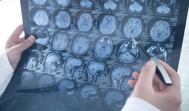 Docteur regardant la photo radiographique de la tête.