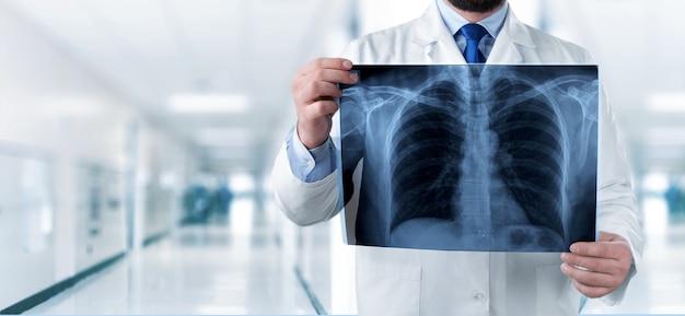 Docteur regardant la radiographie pulmonaire