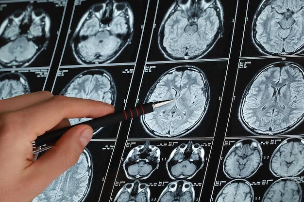 Le docteur vérifie la tomodensitométrie à rayons x