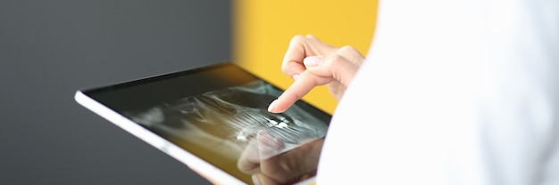 Doigt féminin sur tablette montrant le concept de services dentaires de la mâchoire humaine