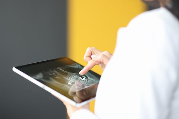 Doigt féminin sur tablette montrant la mâchoire humaine. concept de services dentaires