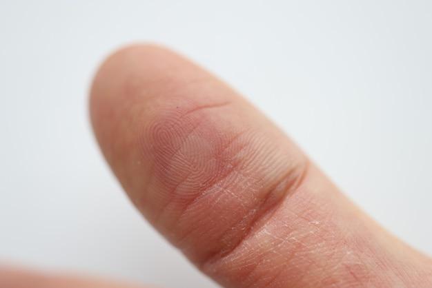 Sur le doigt, il y a un callus rouge et un abcès. concept de soins de traumatologie médicale