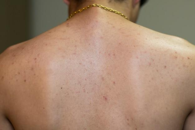 Dos d'un homme avec beaucoup d'acné