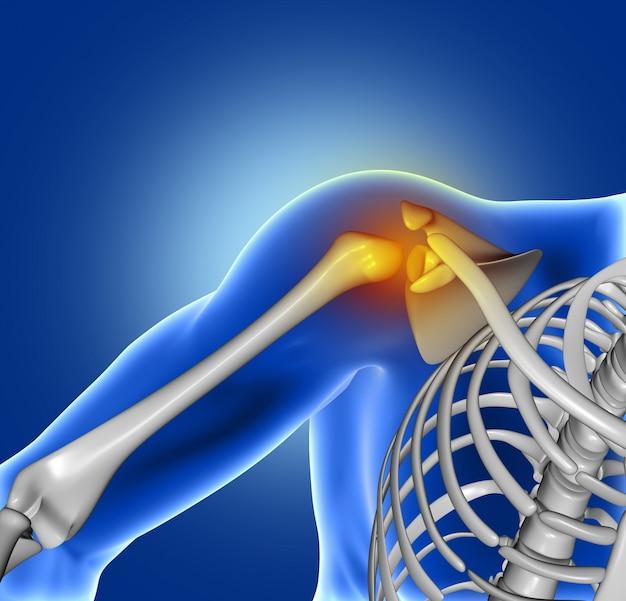 Douleur d'articulation de l'épaule