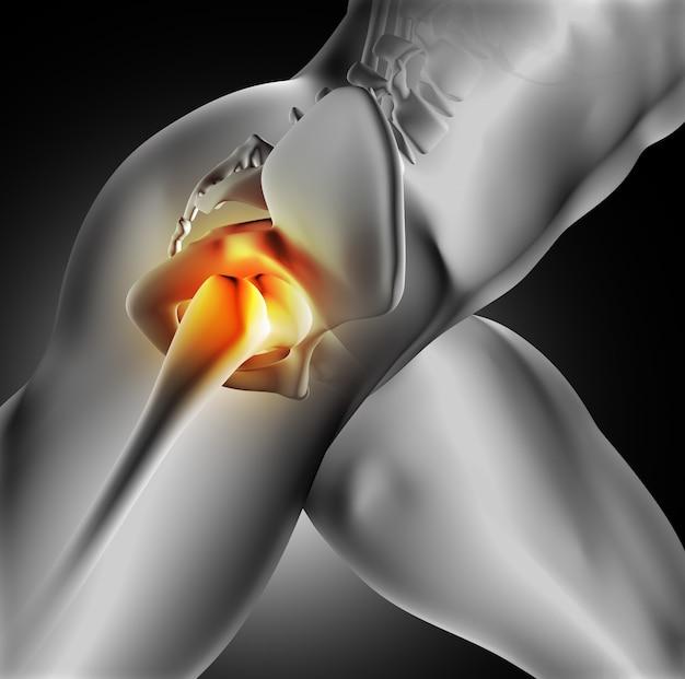 Douleur dans l'articulation de la hanche