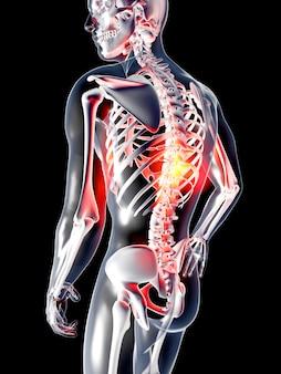 Douleur dans le dos. illustration de rendu 3d. isolé sur fond noir.