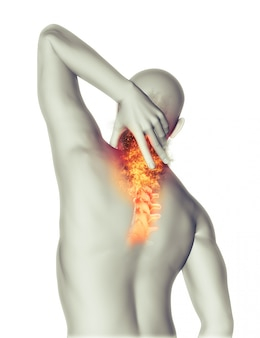 La douleur du cou
