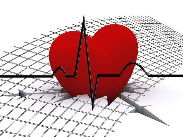 Ecg courbe d'impulsion fissure bénir la fréquence cardiaque