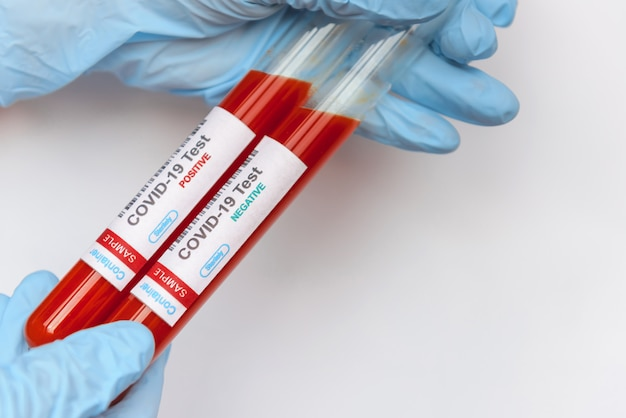 Échantillon de sang infecté par un coronavirus dans un tube à la main du scientifique sur fond blanc