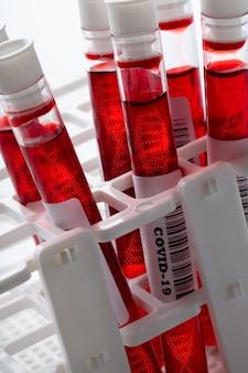Échantillon de test sanguin avec icône adn pour le virus covid 19