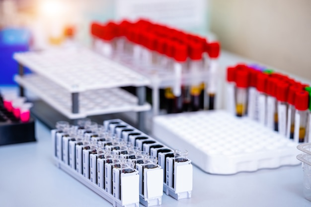 Échantillons de sang pour la recherche en microtubes. essais en laboratoire. recherche chimique. la prévention. diagnostic de pneumonie. identification du covid-19 et du coronavirus. pandémie.