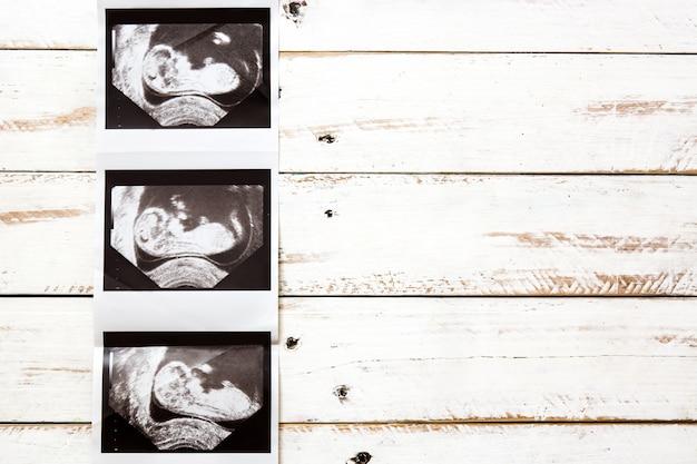 Échographie sur fond de bois avec espace copie