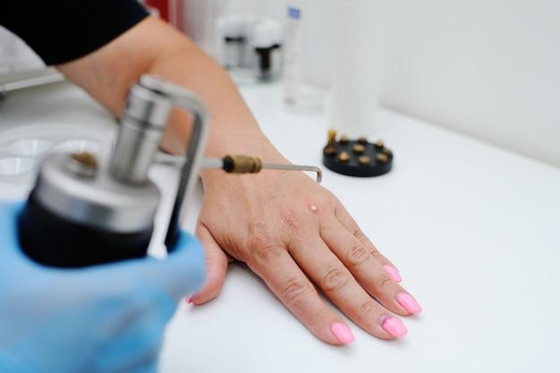 Enlèvement des verrues en clinique de dermatologie. le médecin supprime les formations cutanées avec un équipement spécial - kriodestruktor. papillomes, verrues, oncologie