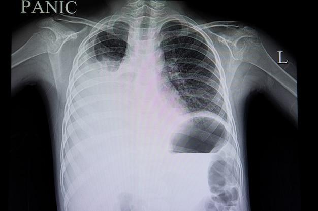 Épanchement pulmonaire dans la dengue